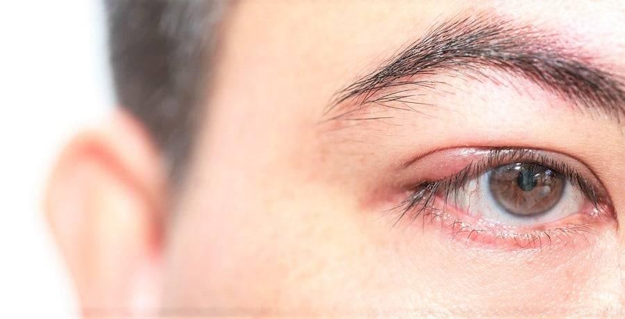Вопрос безопасности: можно ли выдавливать ячмень на глазу?