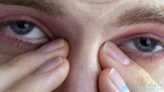 Чешутся глаза в уголках около переносицы: причины и лечение oculistic.ru чешутся глаза в уголках около переносицы: причины и лечение