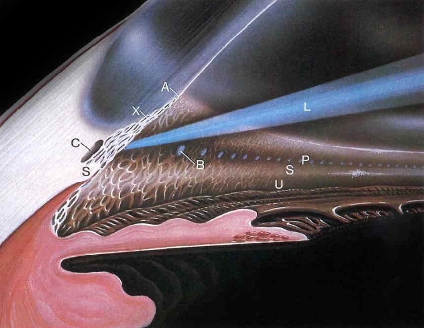 Лазерная десцеметогониопунктура (лдгп)