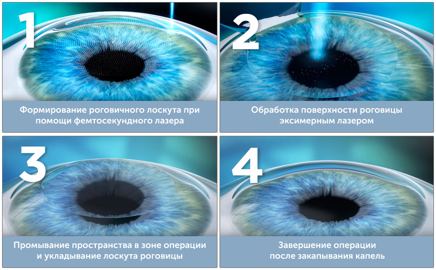 Процедура epi-lasik