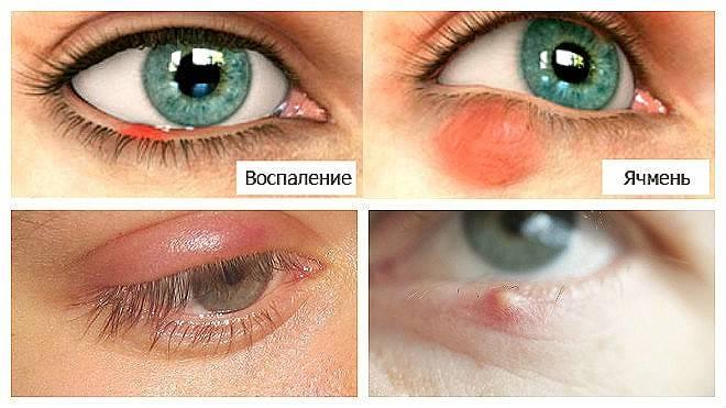 Ячмень и повышение температуры тела - мед портал tvoiamedkarta.ru