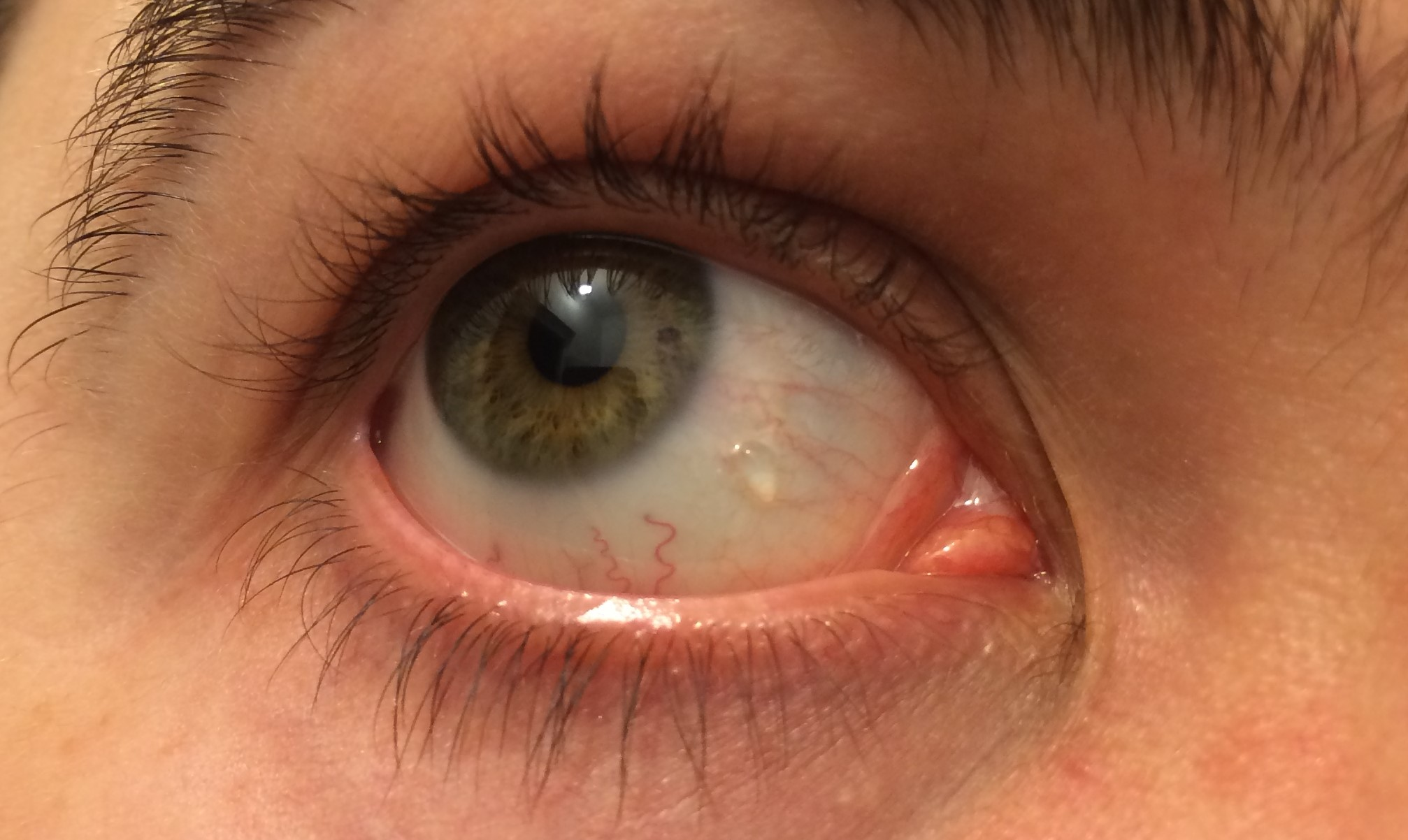 Что такое киста на глазу: причины, лечение - prorak.info