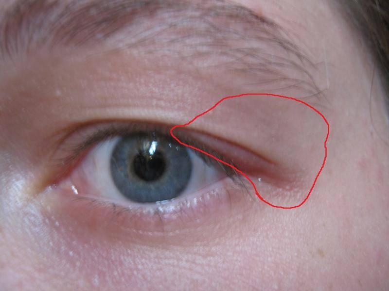 """Боль в глазу при надавливании: причины, лечение - """"здоровое око"""""""