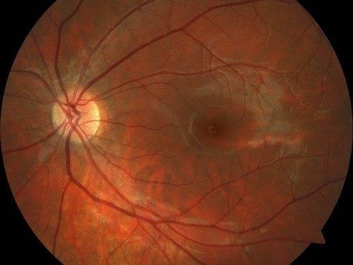 Пигментный невус хориоидеи глаза