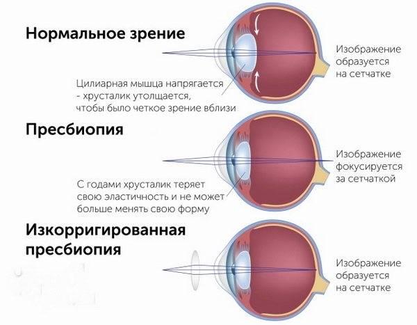 Гиперметропия 1 степени: что это такое, диагностика и лечение