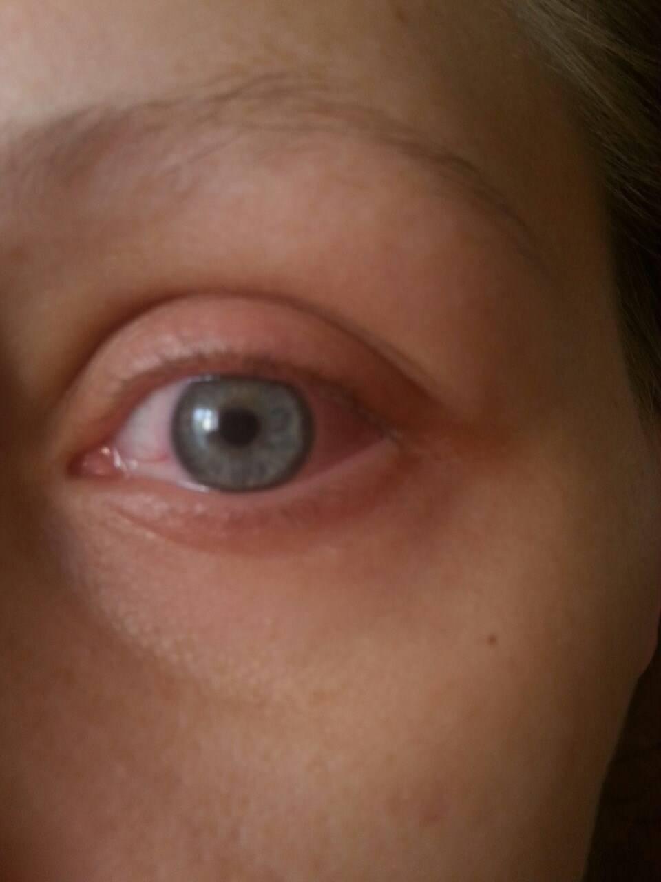 Продуло болит лицо под глазом