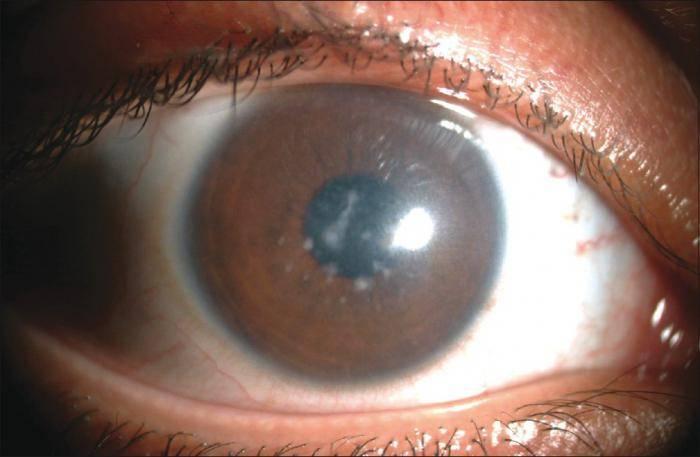 """Хемоз конъюнктивы: симптомы и способы лечения - """"здоровое око"""""""