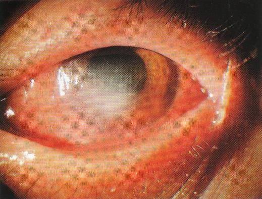 Отслоение роговицы глаза
