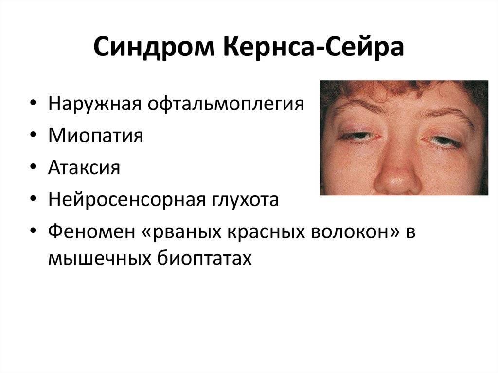 Чем грозит синдром офтальмоплегии
