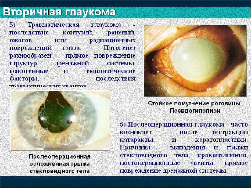 Вторичная глаукома – классификация, причины и лечение (фото)