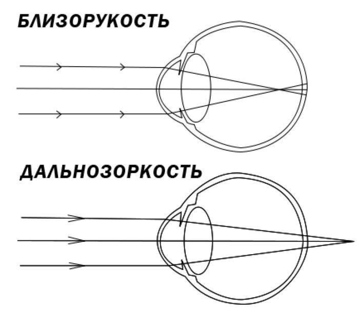 Очки на плюс это дальнозоркость или близорукость - лечение глаз