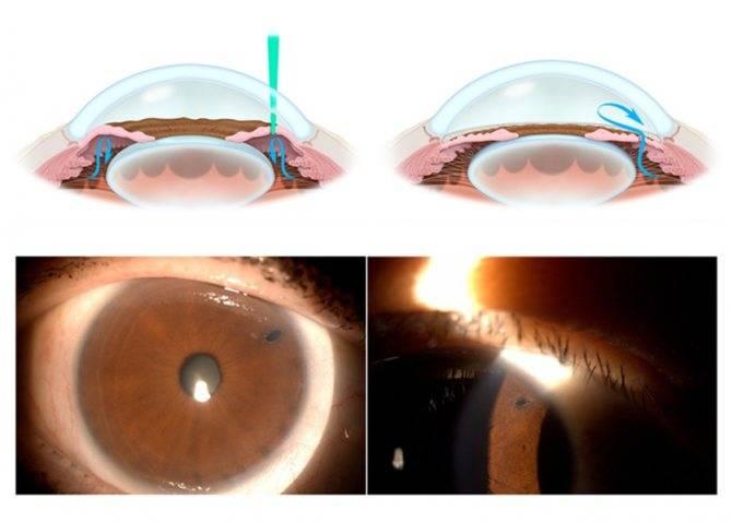 Иридэктомия (иридотомия): суть операции, лазерная и хирургическая