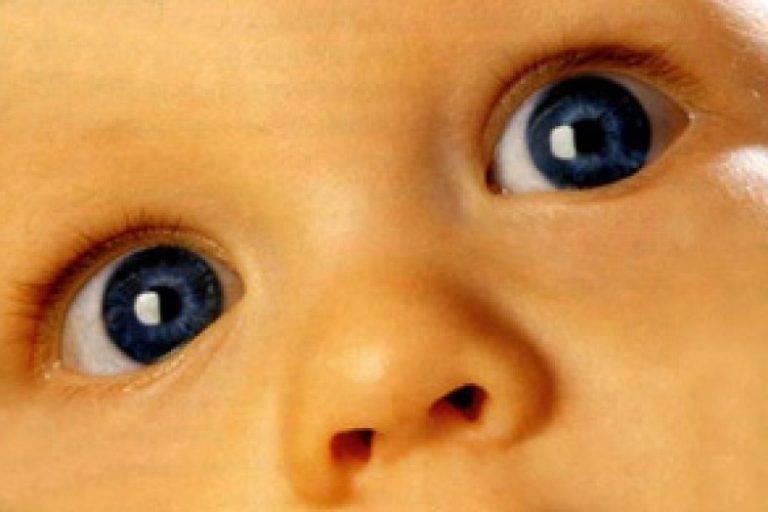 Анизокория глаза: причины, лечение, симптомы и диагностика