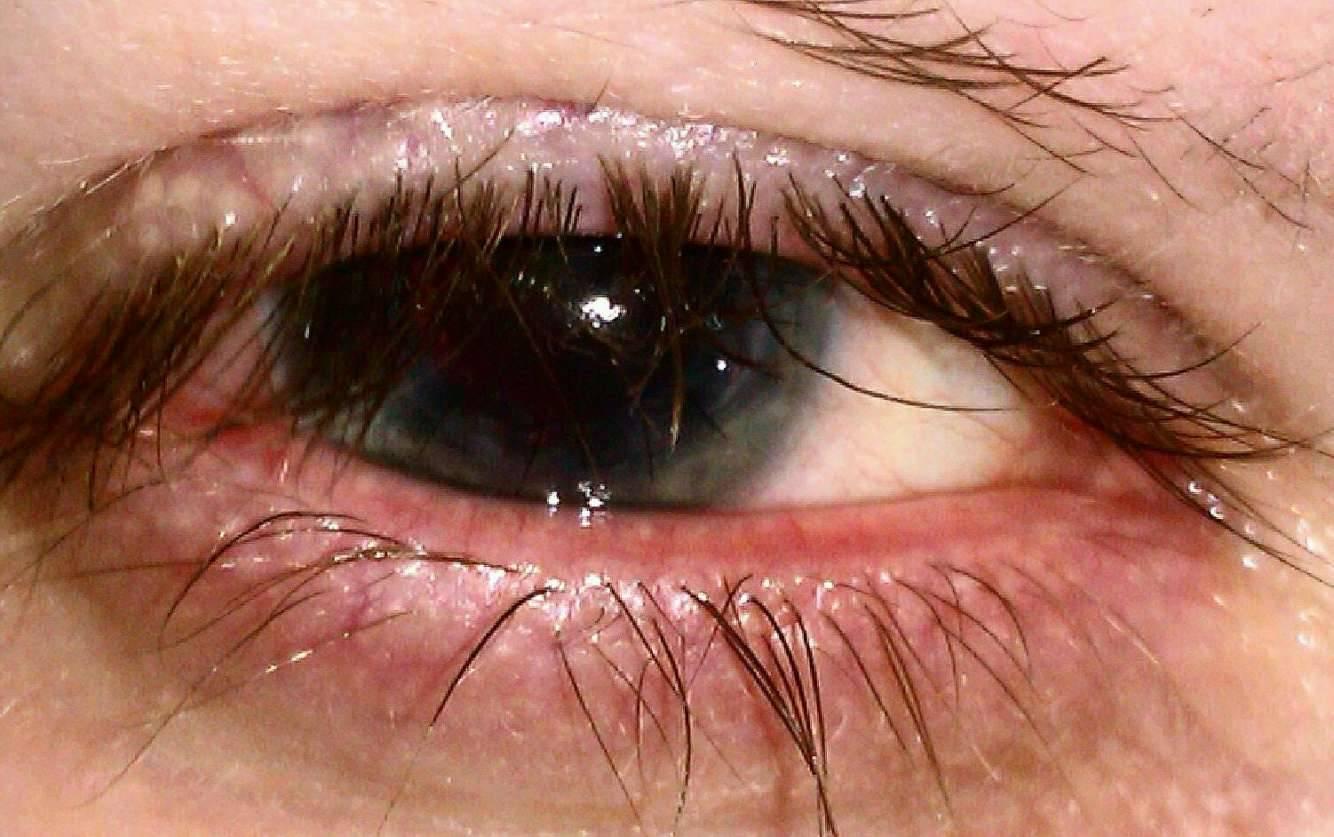 Ячмень на глазу: как избавиться от ячменя на глазу: 10 простых домашних средств - ячмень, глаза, народные средства, лечение