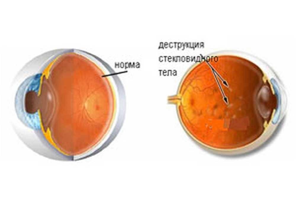 Деструкция стекловидного тела глаза – симптомы и лечение