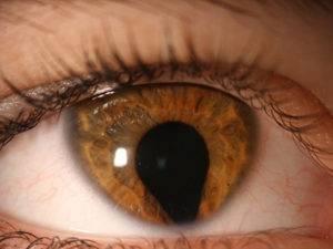 Смещение зрачка: причины, методы лечения, диагностика