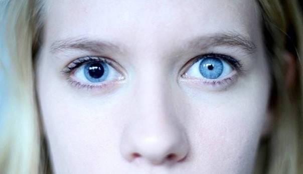 """Зрачки разного размера (анизокория) - """"здоровое око"""""""