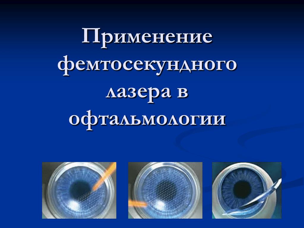 Фемтоласик: технология и этапы лазерной процедуры, реабилитация