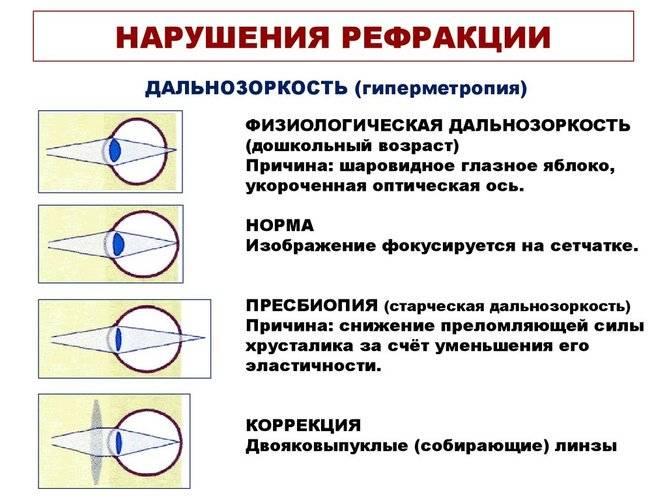 Аметропия глаза: симптомы, коррекция, лечение