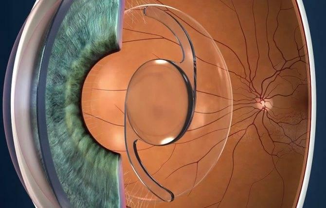 Какой хрусталик лучше для операции при катаракте: отзывы, какие бывают