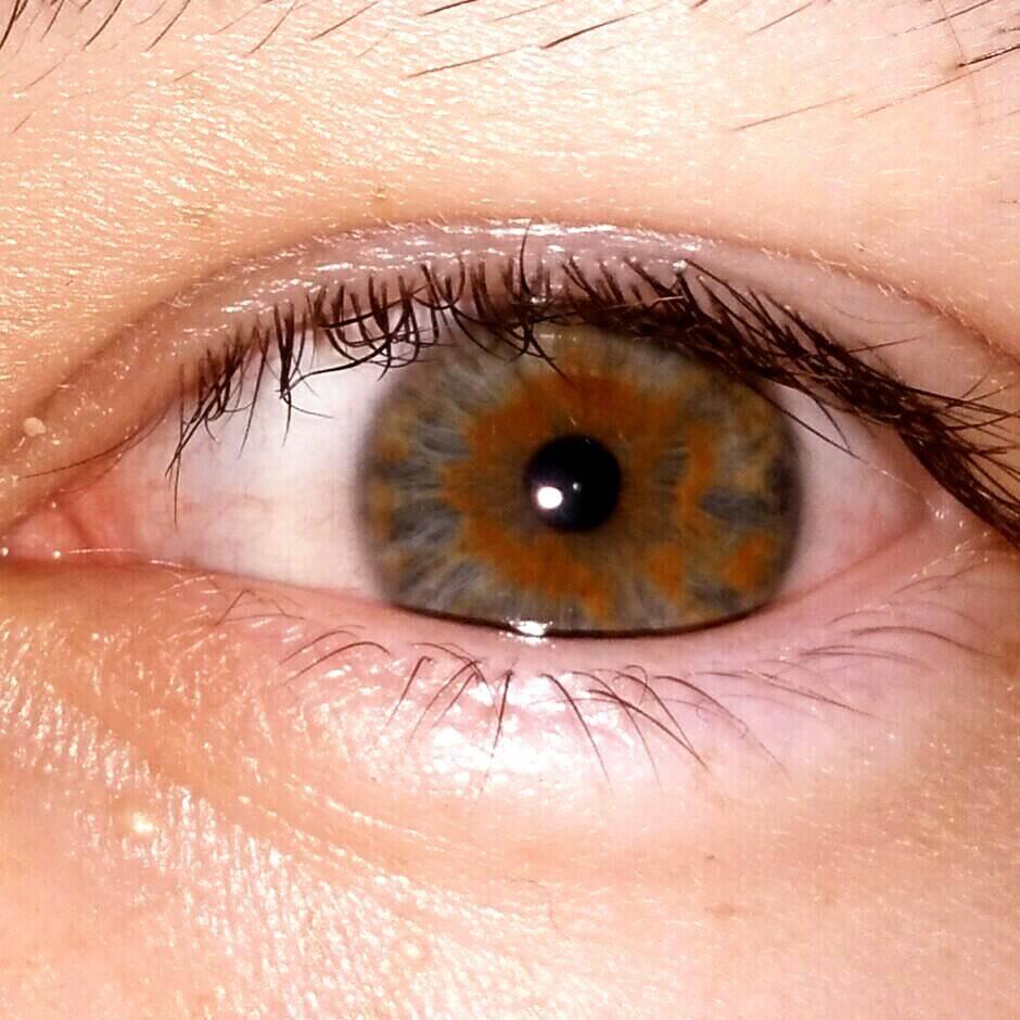 Что такое гетерохромия: причины разноцветных глаз у человека oculistic.ru что такое гетерохромия: причины разноцветных глаз у человека