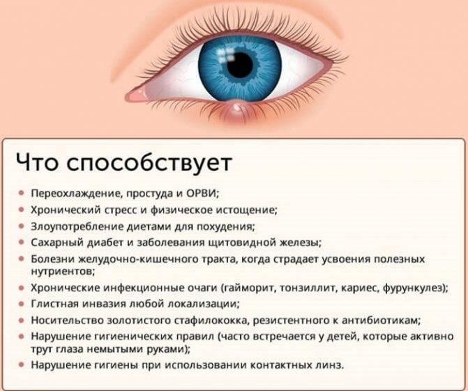 Заразен ли ячмень на глазу или нет для окружающих - как передается от человека к человеку