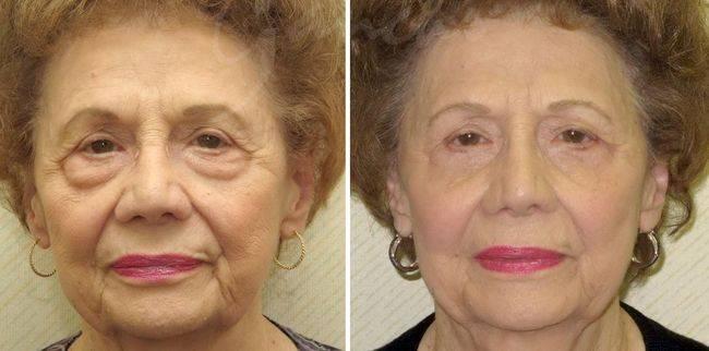 Как убрать грыжи под глазами: операция, лазером и без операции