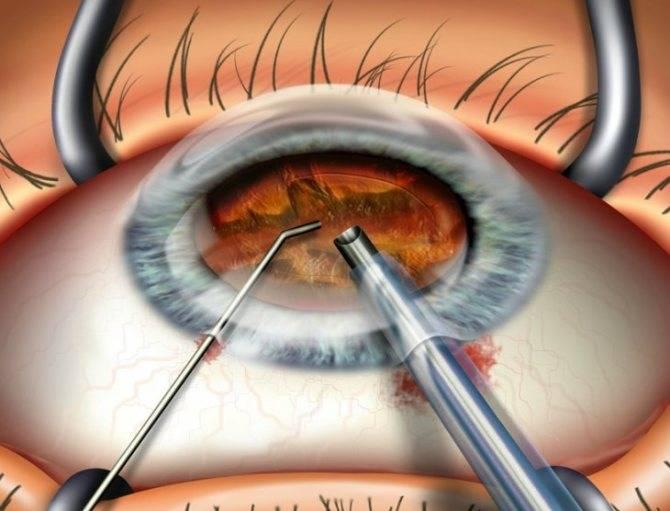 Почему мутно на глазу после операции по катаракте