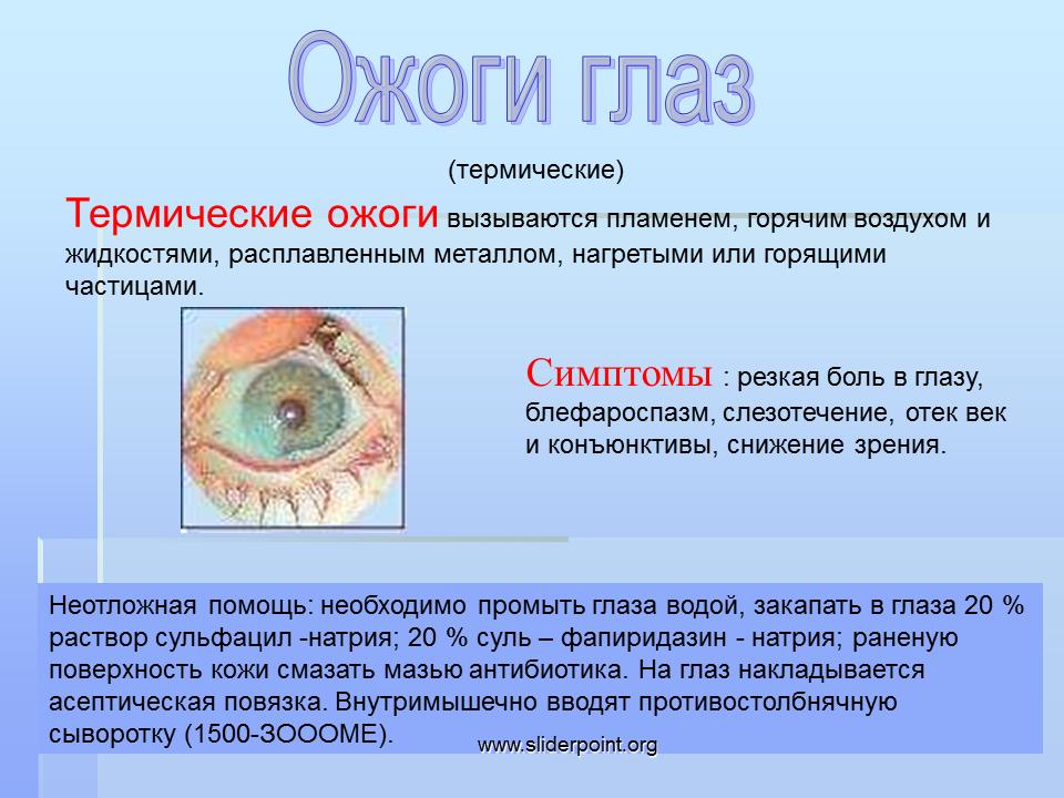 Ожог глаз сваркой - что делать, чем лечить, капли, первая помощь