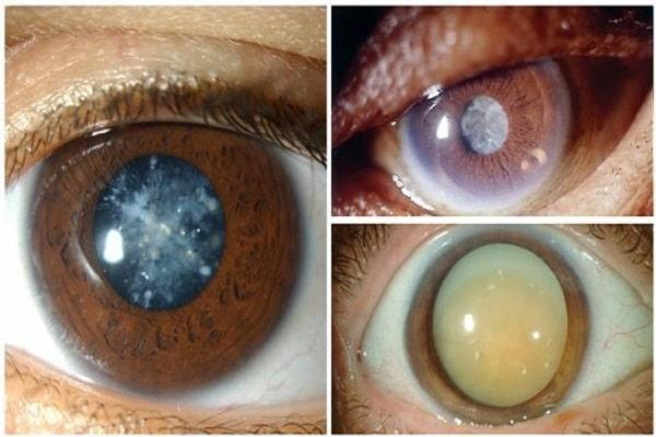 Врожденная катаракта у детей (точечная и другие виды заболевания), в том числе у новорожденных: код по мкб-10, причины возникновения, симптоматика, методы лечения