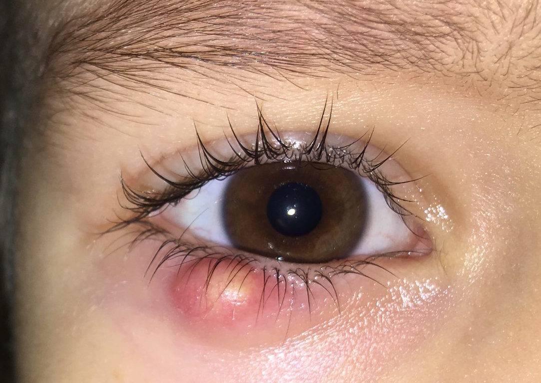 Внутренний ячмень на верхнем веке: фото недуга внутри глаза, лечение
