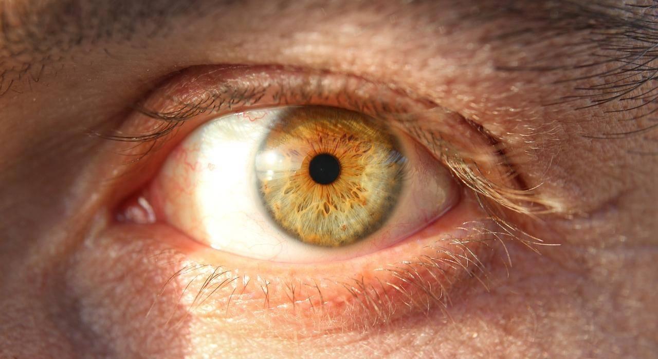 Дергается верхнее веко глаза (миокимия): какие причины и что делать