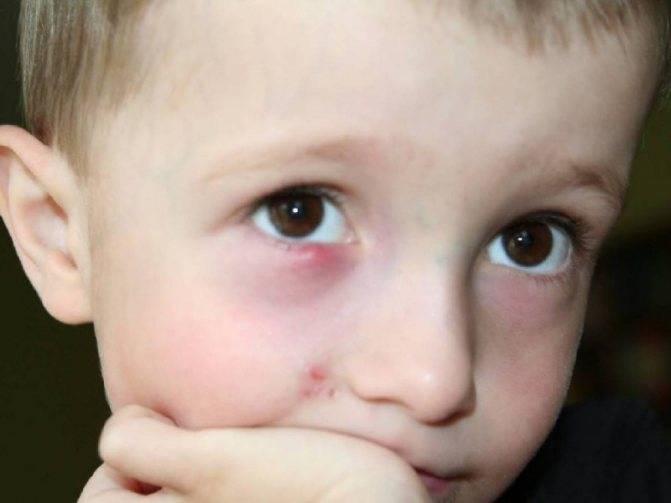 Гноятся глаза у ребенка - причины появления выделений, диагностика и средства лечения