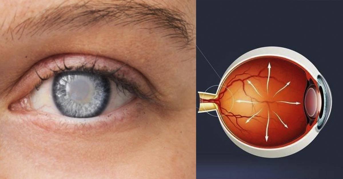 Можно ли вылечить глаукому? какие методы самые эффективные?