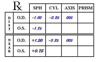 Расшифровка рецепта: какой глаз очков обозначается od, а какой — os; что такое сфера (sph) и аддидация (add)