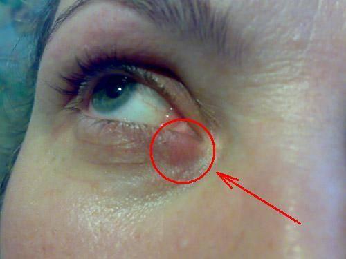 Болит глаз при моргании: и при надавливании: причины, что делать