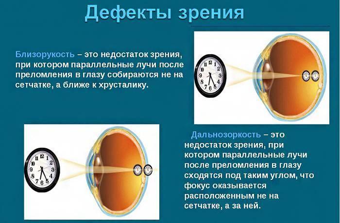 О нарушениях зрения. самые распространенные проблемы.
