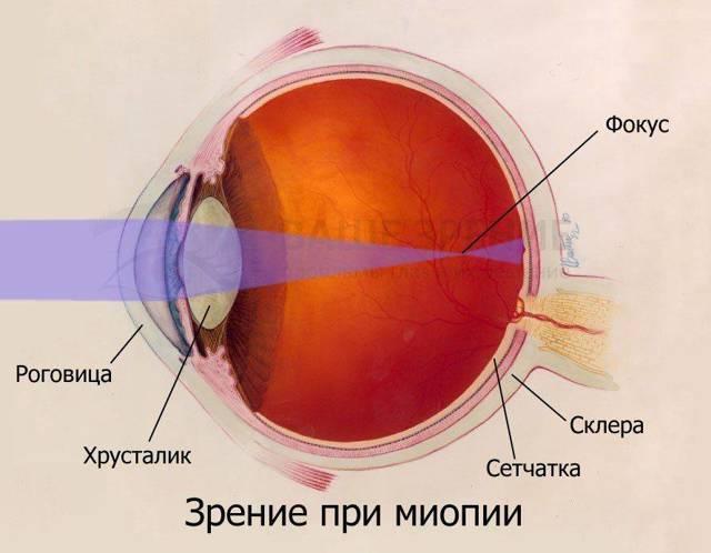 Миопия (близорукость) 1 степени (слабой)