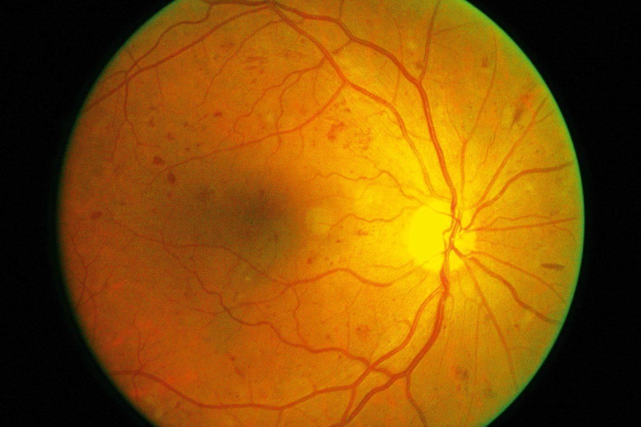 Макулодистрофия сетчатки глаза: лечение влажной и сухой формы