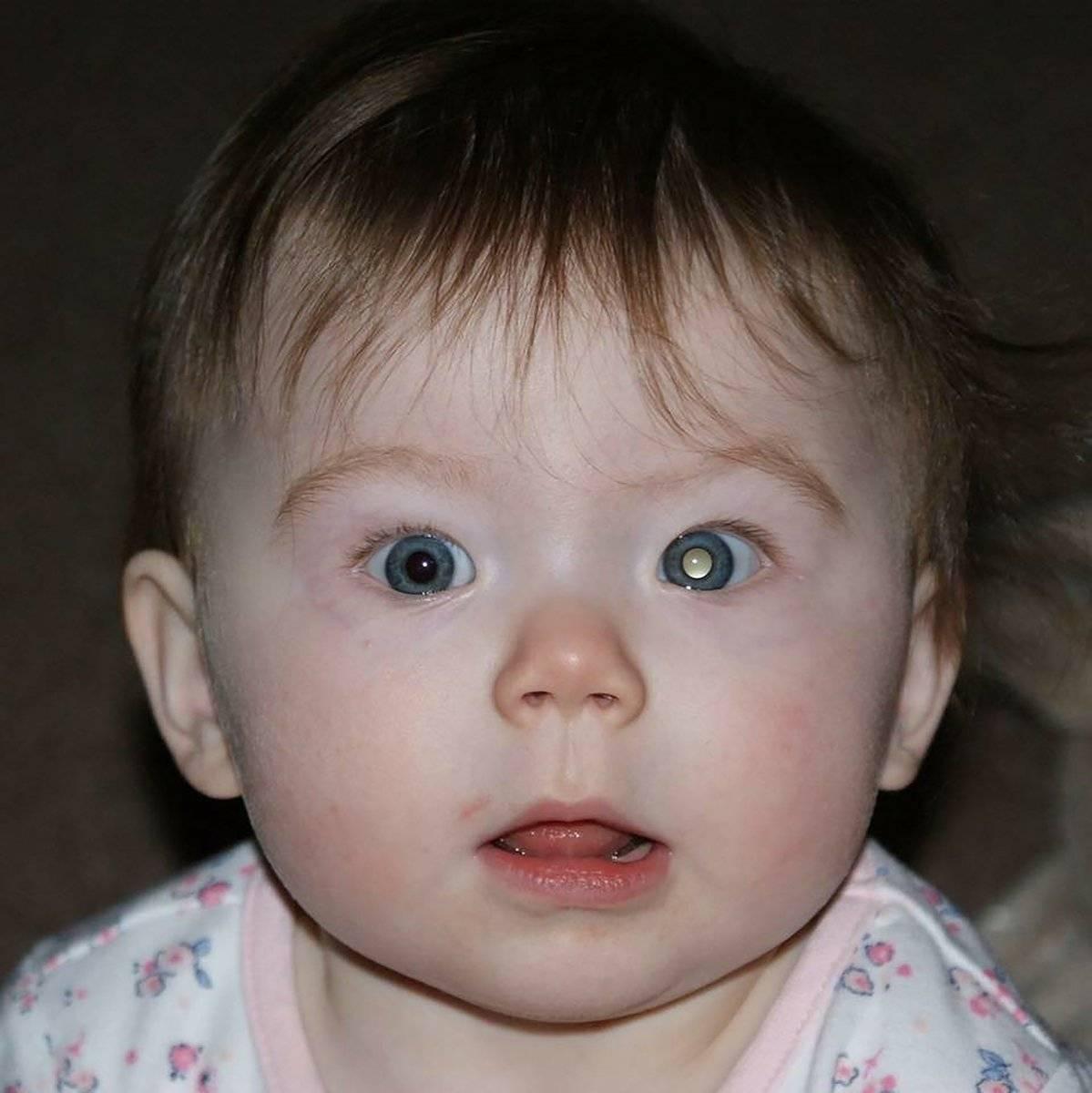 Закатывание глаз: причины, как лечить, как проявляется