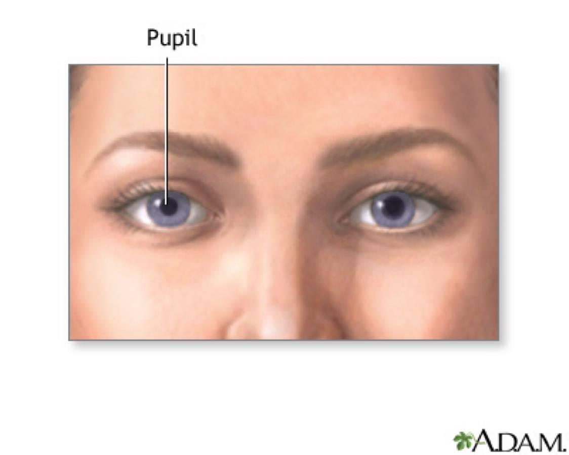 Бельмо на глазу человека: симптомы, причины, эффективное лечение