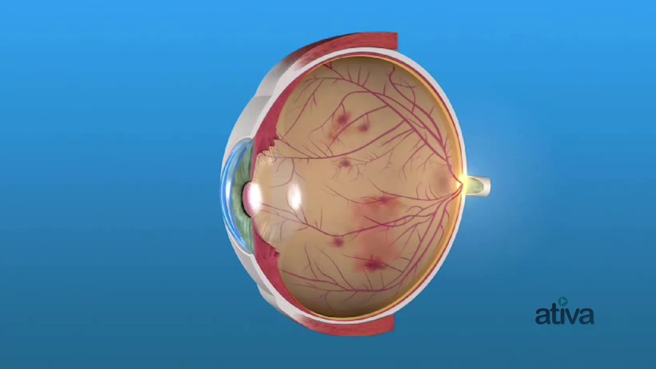 Причины и лечение кровоизлияния в стекловидное тело глаза