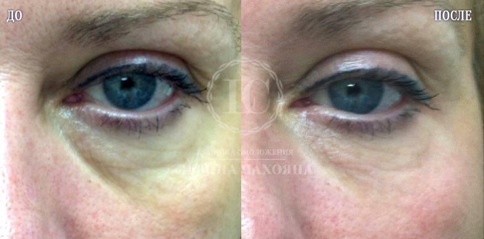 Троксевазин от синяков и мешков под глазами: отзывы врачей, как пользоваться