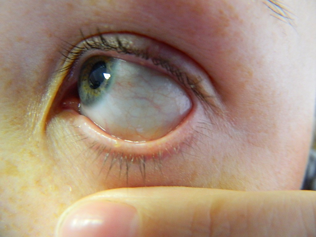 Пузырь на белке глаза - что это, причины и лечение