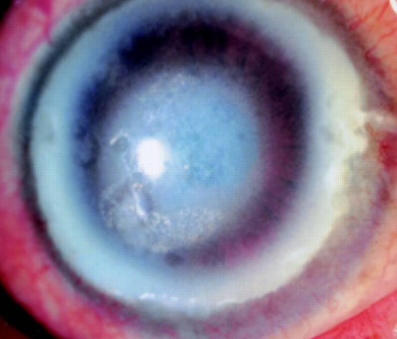 Дистрофия роговицы: что это такое, причины, лечение эпителиально-эндотелиальной дегенерации