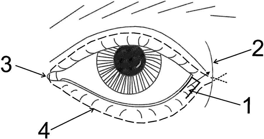 Лагофтальм глаза: причины, симптомы, лечение