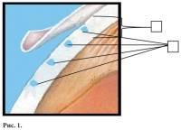 Эффективно ли лечение глаукомы лазером?