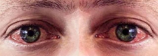Трахома глаз – что это, лечение, причины и симптомы, фото