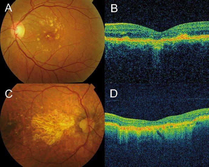 Причины разрыва сетчатки глаза