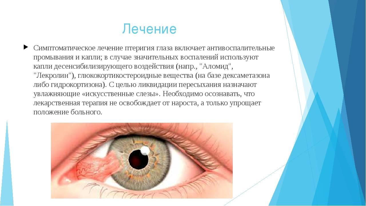 Птеригиум: когда глаза закрывает пелена